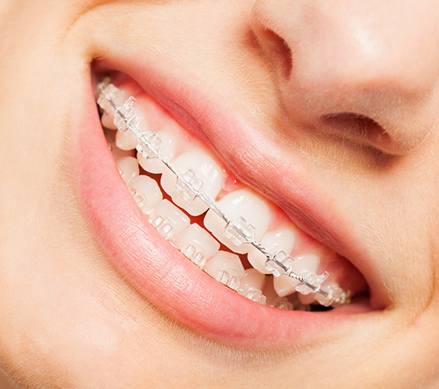Hollywood Clear Braces